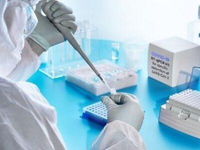 Laboratórios privados buscam ampliar testagem de covid-19