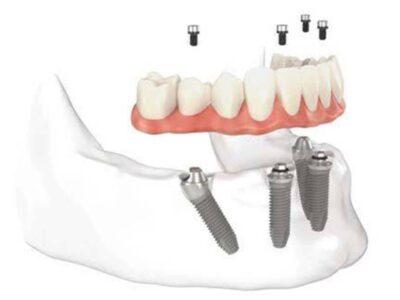 A importância do protocolo como  prótese para reabilitação