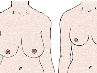 Redução mamária ajuda a evitar lesões no ombro e na coluna