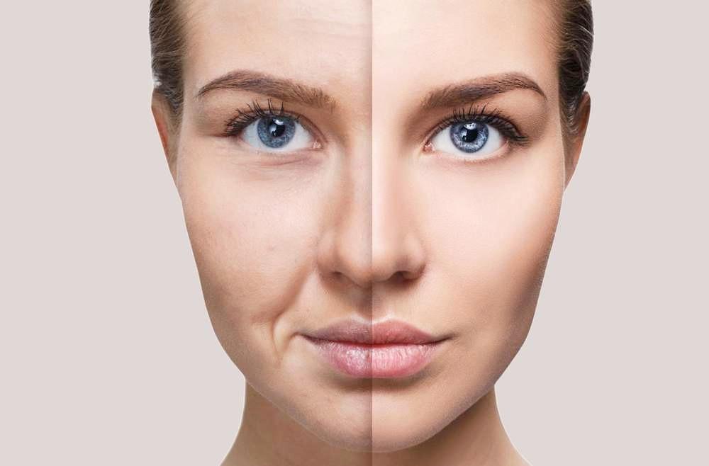 Ácido hialurônico, o queridinho do skincare: conheça os benefícios e saiba se você pode usar