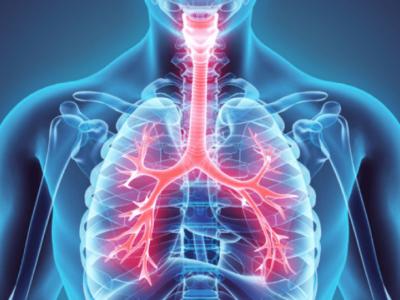 Cannabis medicinal pode auxiliar no tratamento de doenças respiratórias