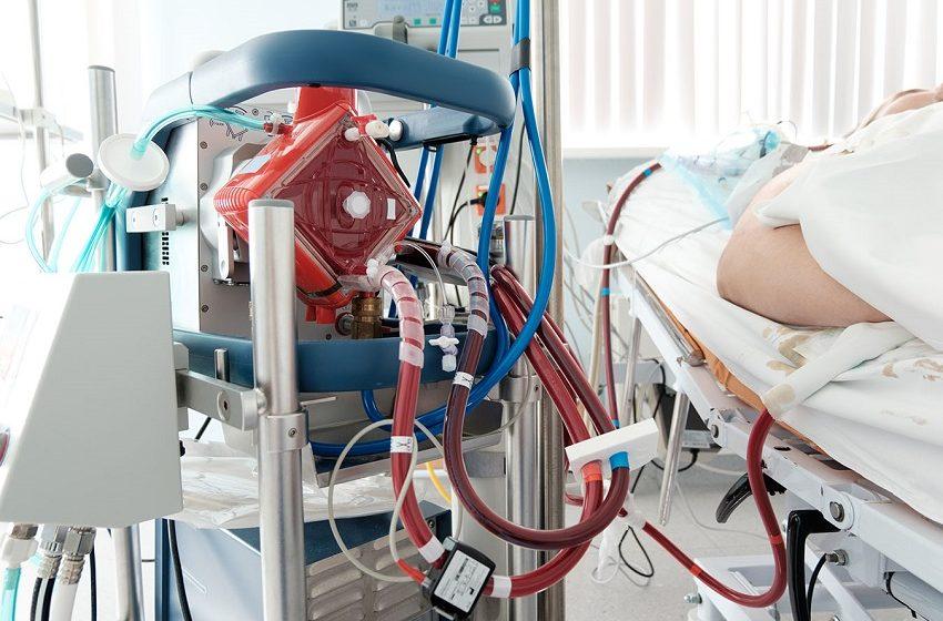 Covid: 2ª onda teve mais mortes de pacientes submetidos ao pulmão artificial, segundo estudos internacionais